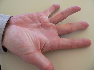 Dupuytrens contracture Disease with gradual bending of the fingers due to scar tissue build-up within the palms