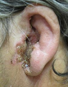 Image Result For Ear Infections Otitis