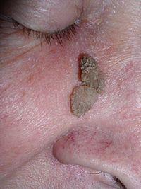papilloma tumor benigno)