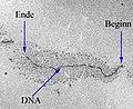 RibosomaleTranskriptionsEinheit (cropped).jpg