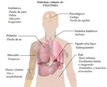 o que e leucemia mieloide aguda tem cura