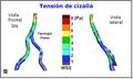 Sistema V-B Estres tangencial, pared vascular B.PNG