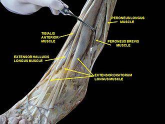 Peroneus longus - Image: Slide 2xzxz