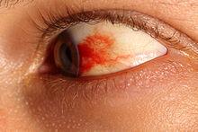 Subconjunctival hemorrhage eye.JPG