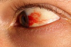 subconjunctival hemorrhage - wikipedia, Skeleton