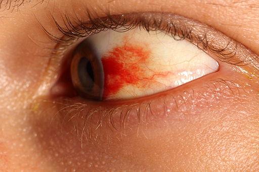Subconjunctival hemorrhage eye