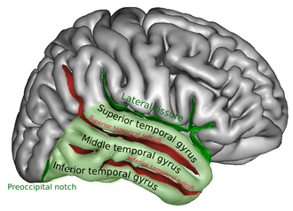 Superior temporal gyrus - Right temporal lobe (shown in green). Superior temporal gyrus is visible at the top of the green area.