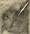 The breast- its anomalies, its diseases, and their treatment (1917) (14570557977).jpg