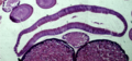 Ascaris - Uterus, Intestine and Oviducts.png
