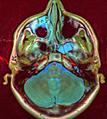 Brain MRI 110439 rgbca.png