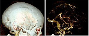 Computed tomography angiography - In volume renderings, automatic bone removal (used in the right image) is helpful for visualizing the intracranial vessels.
