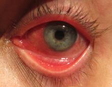 Congestión mucosidad en los ojos