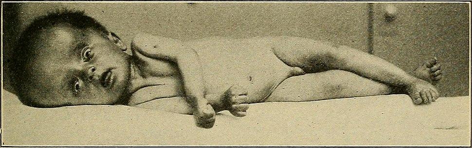 Diseases of children (1916) (14786054323)