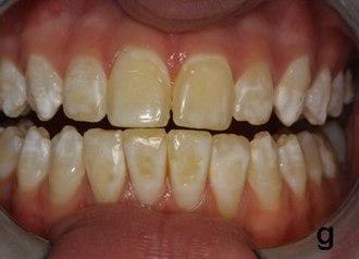 Zahnverfärbung - Wikipedia
