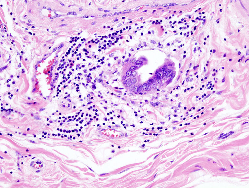 Datei:Gallbladder adenocarcinoma (3) lymphatic invasion histopathology.jpg