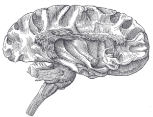 Association fiber - Dissection of cerebral cortex and brainstem showing association fibers and insular cortex after removal of its superficial grey matter