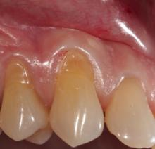 abrasion dental wikipedia