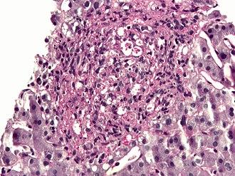 PAS diastase stain - PAS diastase showing Histoplasma in a liver biopsy.