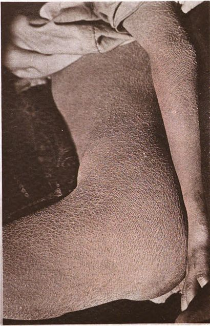 Ichthyosis 2.jpg