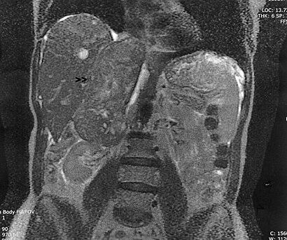 Leiomyosarcoma of the Adrenal vein 1.jpg