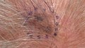 Melanoma in situ, vertex scalp.jpg