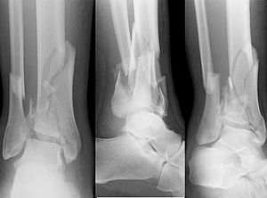 what does the term tibial fibular fracture mean