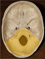 Posterior cranial fossa - Superior view of cranial floor.png