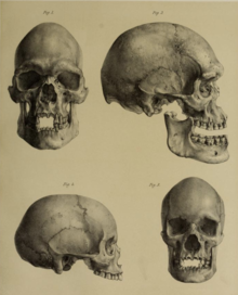 Photograph of three skulls in front and side view, used by Sir William Turner to racially define Aboriginal Australians