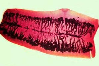 Taenia saginata - Taenia saginata proglottid stained to show uterine branches:  The pore on the side identifies it as a cyclophyllid cestode.