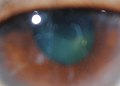 Unexplained multi-colors in the eye's pupil, cornea and iris III.jpg
