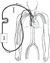 Veno-arterial (VA) ECMO for cardiac or respiratory failure.jpg