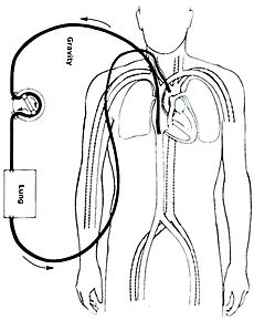 Veno-arterial (VA) ECMO for cardiac or respiratory failure.jpg