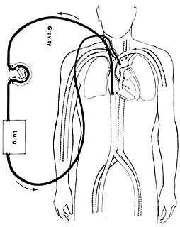 Extracorporeal membrane oxygenation Extracorporeal technique of providing both cardiac and respiratory support