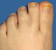 Webbed Toes Wikipedia