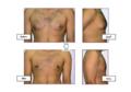 نتائج عملية تجميل شفط دهون التثدي عند الرجال.png