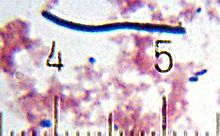 """Lactobacillus delbrueckii"" subsp. ""bulgaricus"" from a sample of yogurt. Numbered ticks are 11 μm apart."