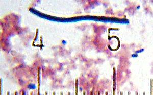 Activia - Lactobacillus bulgaricus, also from a sample of Activia yogurt.  The numbered ticks are 11 micrometres apart.
