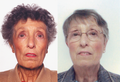 A 69-Year-Old Female with Tiredness and a Persistent Tan 01.png