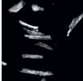 Adult Cardiac myocyte.png