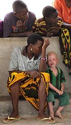 [IMAGE:http://upload.wikimedia.org/wikipedia/commons/thumb/9/96/Albino_boy_tanzania.jpg/140px-Albino_boy_tanzania.jpg]
