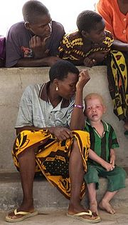 Tanzanian albino child sitting with his family.