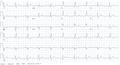 Bifascicular block ECG.png