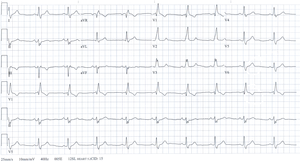 Sinus rhythm - Example of a sinus rhythm with bifascicular block.