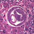 Capillaria hepatica 500x liver.jpg