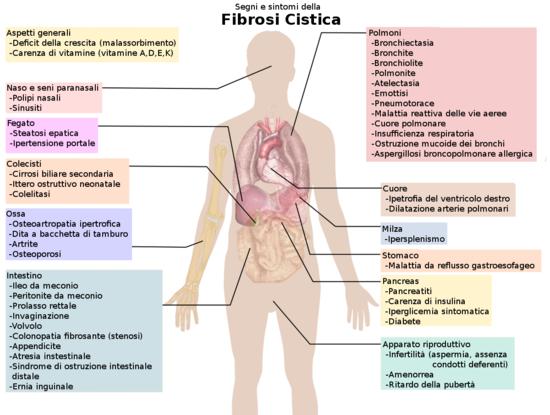 Risultati immagini per Fibrosi cistica