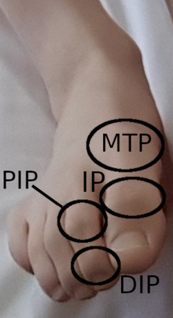 DIP, PIP, IP and MTP joints of the foot.png