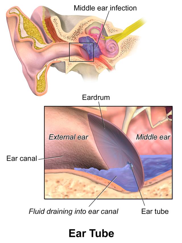 Tympanostomy tube - Wikiwand