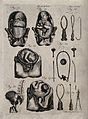 Eight diagrams illustrating difficult births and obstetrical Wellcome V0014936.jpg