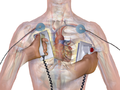 External Defibrillator.png