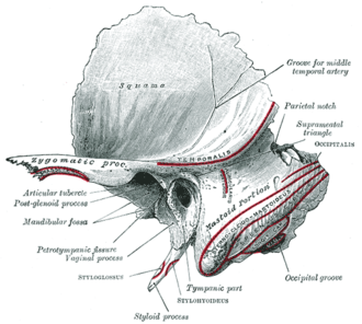 Tympanic part of the temporal bone - Left temporal bone. Outer surface. (Tympanic part at bottom center.)